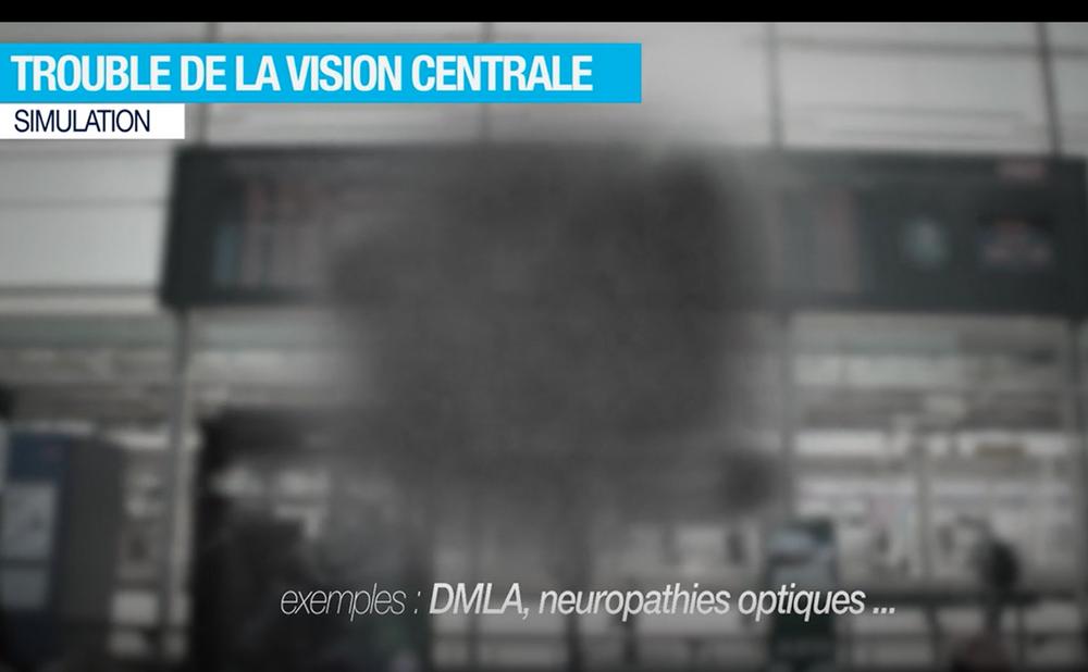 Exemple d'altération du champ visuel central
